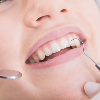 Routine Dental Exam