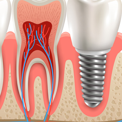 Cost of Dental Implants in India