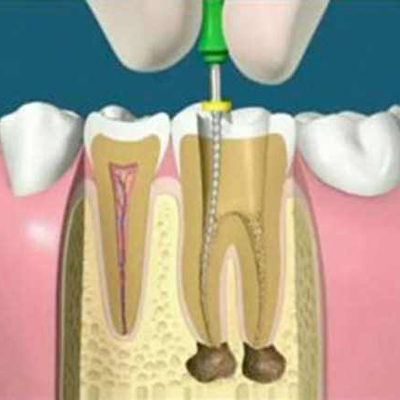 root canal treatment at affordable cost